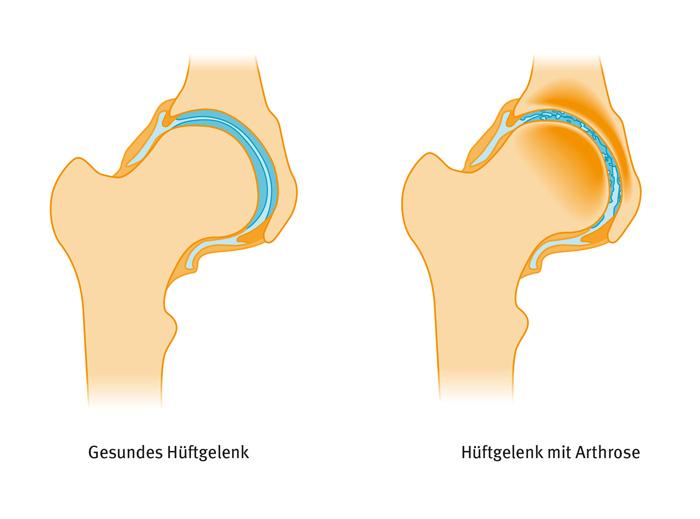 Was ist Arthrose