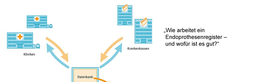 Was ist ein Endoprothesenregister? Wie arbeitet ein Endoprothesenregister Erklärung Endoprothesenregister