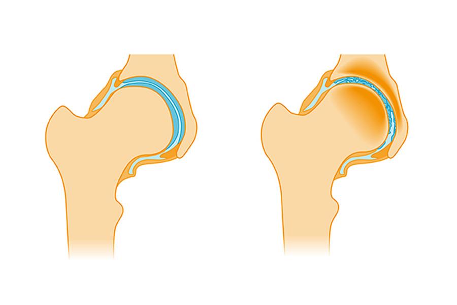 Hüftschmerzen – häufig ein Anzeichen für Hüftarthrose